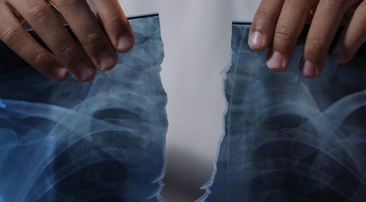 В Великобритании зафиксировали первый в мире случай вертикального перелома пениса