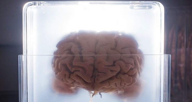 Почему у людей такой большой мозг