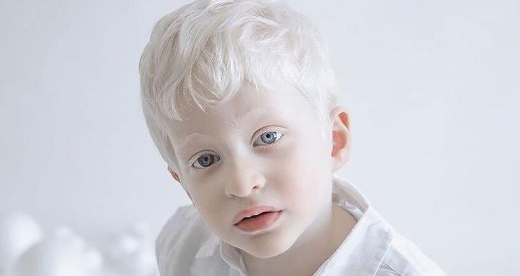 Что будет, если все люди станут альбиносами